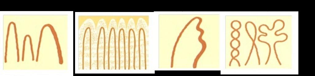 毛細血管 血管の状態